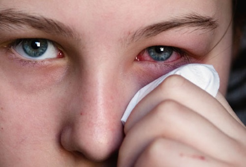 eye-allergy-relief- (2)
