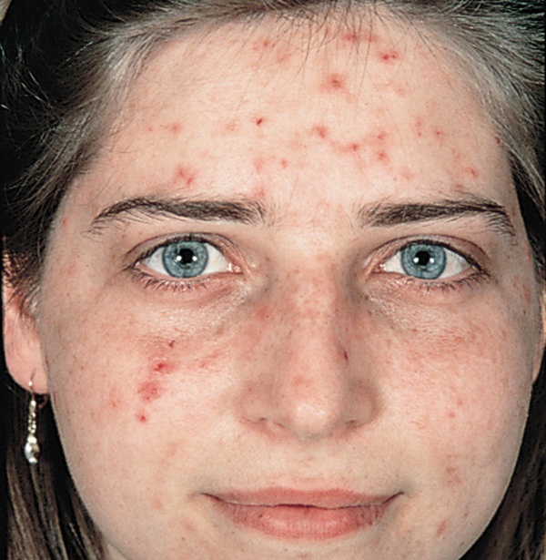 acne-treatment- (3)